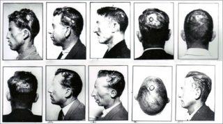 Imagénes de pacientes de neurología