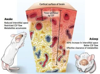 Imagen de superficie cortical del cerebro